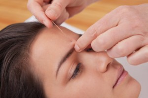 Eine alternative Heilmethode ist die sehr bekannte Akupunktur